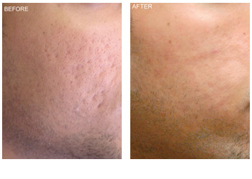 Laser Skin Resurfacing Grand Rapids Renewal Skin Spa