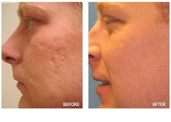 acne_scar_removal_3