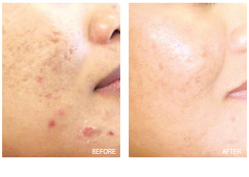 acne_scars_removal_6