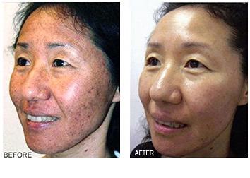 acne_treatments