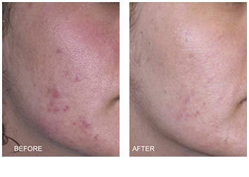 acne_treatments_1