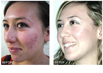 acne_treatments_4
