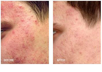 acne_treatments_6