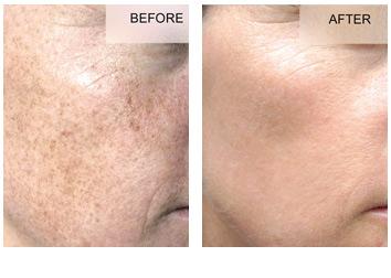 bbl_freckles_brown_spots