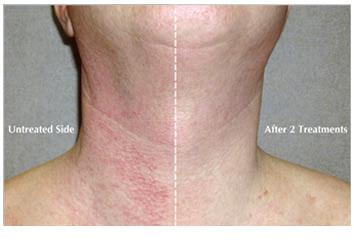 bbl_redness_removal_neck