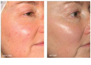 bbl_rosacea_redness_removal