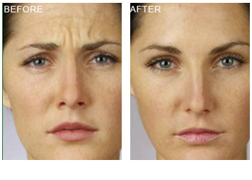 Safety of cosmetic facial fillers