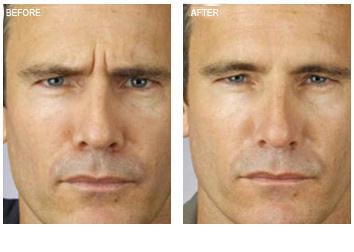 botox_treatment_male_wrinkles