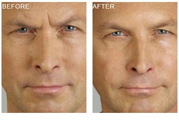 botox_treatment_wrinkles_1