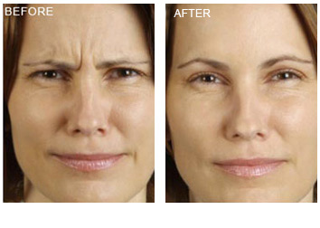 botox_treatment_wrinkles_2