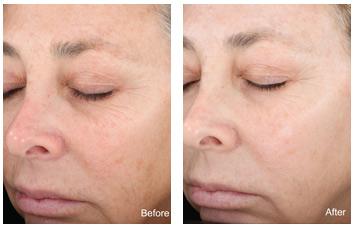 chemical_peel_wrinkles_spots
