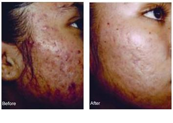 chemical_peels_acne_scars