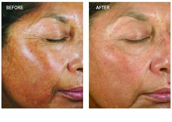 chemical_peels_wrinkles_pigment