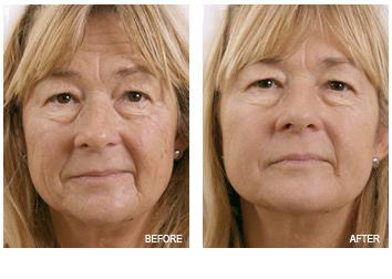 exilis_skin_tightening_wrinkles