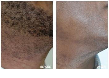 laser_hair_removal_-2