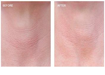 laser_peel_redness_wrinkles