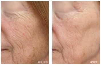 laser_peel_wrinkles_texture