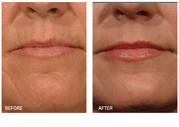 laser_resurfacing_lip_lines