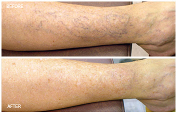 leg_vein_removal_treatment