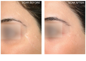 profractional_scar_revision