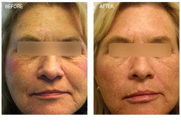 profractional_wrinkles_texture