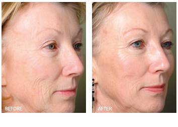 profractional_wrinkles_texture_-2
