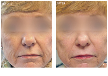 profractional_wrinkles_texture_laxity