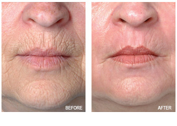 resurfacing_mouth_chin_lines