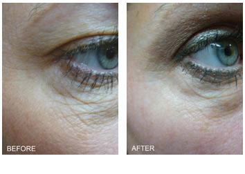 skin_tightening_eyes