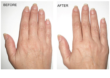 skin_tightening_hands