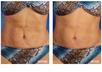 skin_tightening_loose_abdomen