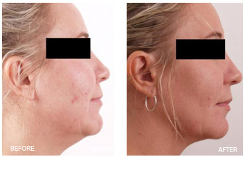 skin_tightening_neck