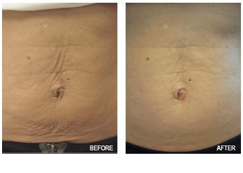 skin_tightening_stomach
