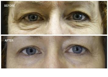 skin_tightening_wrinkles_eyes